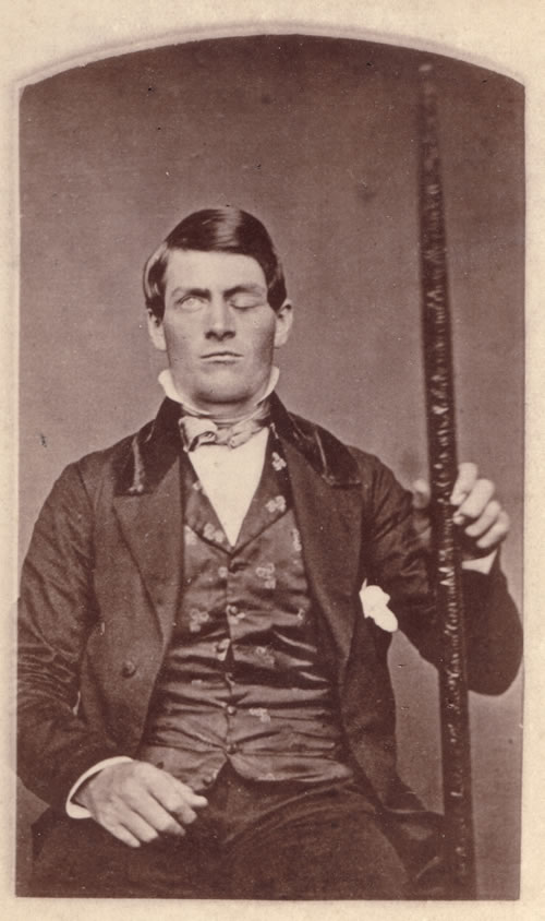 Phineas Gage photograph