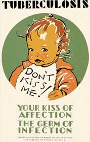 childrens-tuberculosis-poster-1936